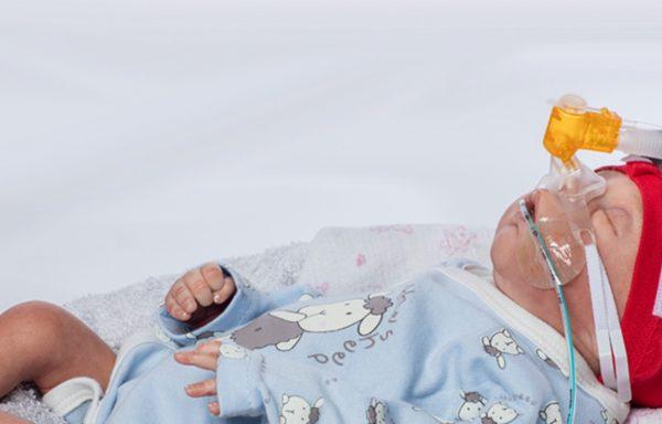 Hệ thống thở nCPAP (máy thở nCPAP) – Medin Đức